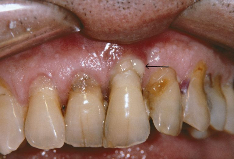 Pyorrhea is gum disease we all should know about