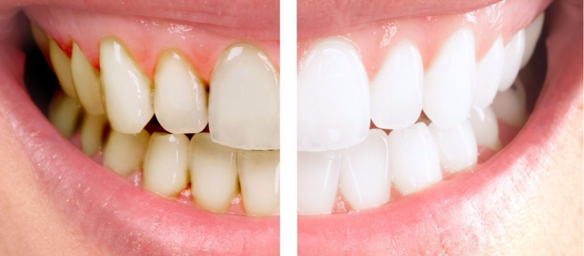 Plasmolifting - An Innovative Treatment Of Periodontal Disease
