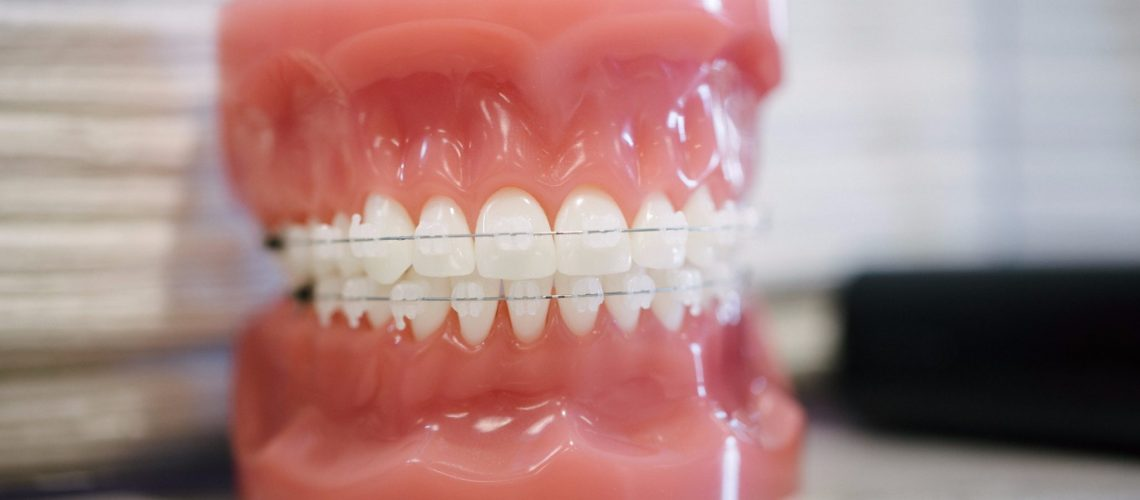 The Different Types Of Braces