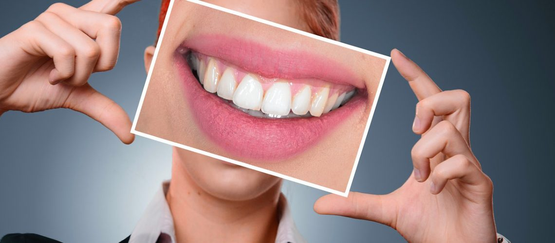 White teeth are a reflection of flawless dental hygiene